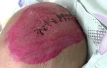 Bé gái gần 3 tháng tuổi bị chấn thương sọ não vì điện thoại rơi trúng đầu
