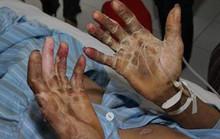 Dịch sởi bùng phát được liệt vào 10 bệnh truyền nhiễm lớn nhất năm