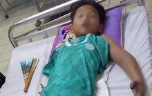 Ra đồng bắt cua với bố, bé trai 11 tuổi bị rắn hổ mang cắn nguy kịch
