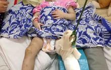 Mẹ nuôi đánh bé gái 1 tuổi đến gãy chân chỉ vì biếng ăn, hay khóc