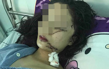 Vụ cô gái xinh đẹp 18 tuổi bị rạch mặt: Công an thông tin bất ngờ về nguyên nhân