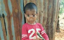 Căn bệnh kỳ lạ khiến cậu bé bị tụt não xuống mũi