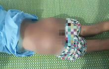 Bé gái 12 tuổi bị công an viên đánh thâm tím người do nghi ngờ trộm tiền