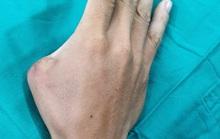 Lấy ngón chân nối thành công vào ngón tay bị mất