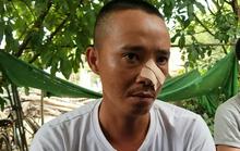 Vụ nhóm thanh niên đến tận nhà truy sát 3 cha con: Lời kể của nạn nhân