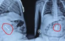 Đinh vít bằng sắt dài 3,5 cm nằm trong tá tràng cháu bé 20 tháng tuổi
