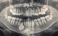 Hi hữu: Lấy gần 100 cái răng trong miệng một thiếu niên ở Khánh Hòa