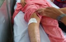Bệnh viện Chợ Rẫy xin lỗi người bệnh vụ khoan nhầm cẵng chân