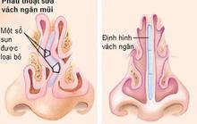 Lệch vách ngăn mũi có cần phẫu thuật?