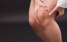 Liên hệ khó ngờ giữa đau đầu gối và… tai biến tim mạch