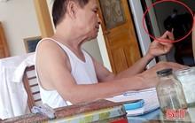 Thầy lang ở Hà Tĩnh dùng kính lúp chẩn đoán... bệnh dại!
