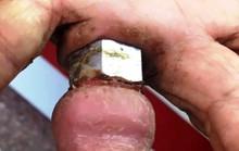 Cụ bà suýt mất ngón tay vì đeo nhẫn bù lon