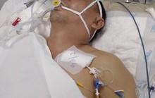 Cựu lực sĩ thể hình trong cảnh thập tử nhất sinh