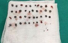 Nhặt gần 40 viên đạn găm trên mặt cho nam thanh niên