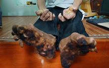 Bệnh người cây cực kỳ hiếm gặp đã được ghi nhận ở Việt Nam