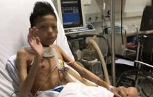 Cuộc sống trong lồng kính của thiếu niên 17 tuổi nặng 30 kg được ghép phổi với chi phí 5 tỉ đồng