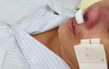 Người phụ nữ bị vi khuẩn lãng quên ăn vẹt cánh mũi