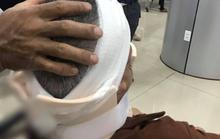 Té ngã, người đàn ông bị cây sắt lớn xuyên từ gáy đến hàm