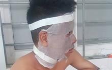 Chùm bóng bay phát nổ trên sân, 3 cầu thủ U14 CLB Sông Lam Nghệ An nhập viện