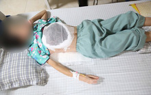 Người phụ nữ bị ngực lở loét, hoại tử do thầy lang bảo cứ chờ khối u vỡ