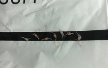 Kinh hãi bé 1 tuổi bị 7 mảnh xương cá mắc khắp đường thở khi ăn cháo