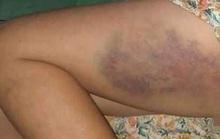 Đề xuất xử phạt hành chính cô giáo đánh bầm dập bé gái lớp 3