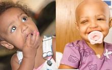Mẹ phát hiện con gái mắc bệnh ung thư hiếm gặp nhờ mạng xã hội