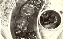 Người phụ nữ đứt đôi quả thận được cứu sống nhờ báo động đỏ
