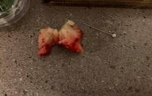 Úc: Bé gái nhập viện vì ăn dâu tây chứa kim