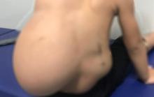 Bé 2 tuổi oằn mình cõng khối u mỡ 4 kg trên lưng