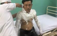 Hành động quái dị của kẻ cướp ngân hàng ở Bình Tân