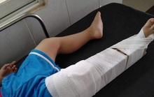 Chuẩn bị bó bột cho cháu bé 3 tuổi bị cô giáo mầm non làm gãy chân