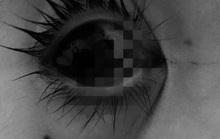 Cấp cứu bé gái bị dao chọc vào mắt làm thủng củng mạc