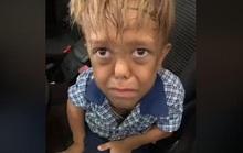 Cậu bé người lùn muốn đâm vào tim mình vì bị bắt nạt ở trường