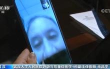 Bác sĩ Vũ Hán nhiễm bệnh tiết lộ điều quan trọng đánh bại virus corona