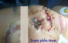 Hãi hùng khúc gỗ đâm xuyên thấu mũi bé trai 8 tuổi
