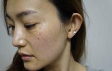 Vì sao phụ nữ Việt lại dễ bị nám?