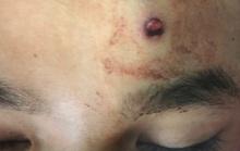 Thiếu niên 16 tuổi bị đạn bắn xuyên não khi đi săn cùng bạn