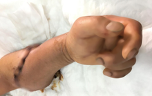 Phẫu thuật nối cẳng tay bị lưỡi dao cắt đứt phăng