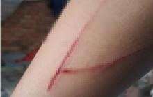 Bé gái nạn nhân vụ giao cấu ở Bình Chánh hoang tin bị tấn công