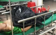 Tự đâm vào bụng, người đàn ông tới bệnh viện cấp cứu cùng đoạn ruột đứt rời