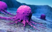 Phát hiện yếu tố khiến người châu Á dễ chết vì 2 dạng ung thư