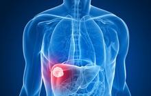 2 loại thuốc cũ bất ngờ cứu người ung thư gan ngoạn mục