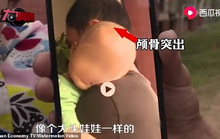 Trung Quốc: Trẻ em bị sưng đầu vì thức uống protein gắn mác sữa công thức?