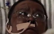 Bác sĩ Trung Quốc bị đổi màu da vì Covid-19 qua đời sau gần 5 tháng điều trị
