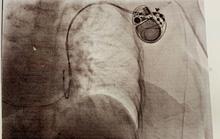 Bác sĩ vã mồ hôi với ca bệnh tréo ngoe có tim bên phải
