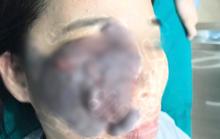 Nữ công nhân ở Bình Dương bị u máu ăn nửa mặt được phẫu thuật miễn phí