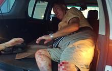 Ông tây từng có hành động chặn xe đi ngược chiều, bất ngờ bị tai nạn