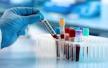 Phương pháp giá rẻ xác định 5 loại ung thư trước đến 4 năm