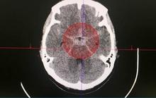 Nút túi phình mạch máu não, cứu cô gái 5 lần đột quỵ